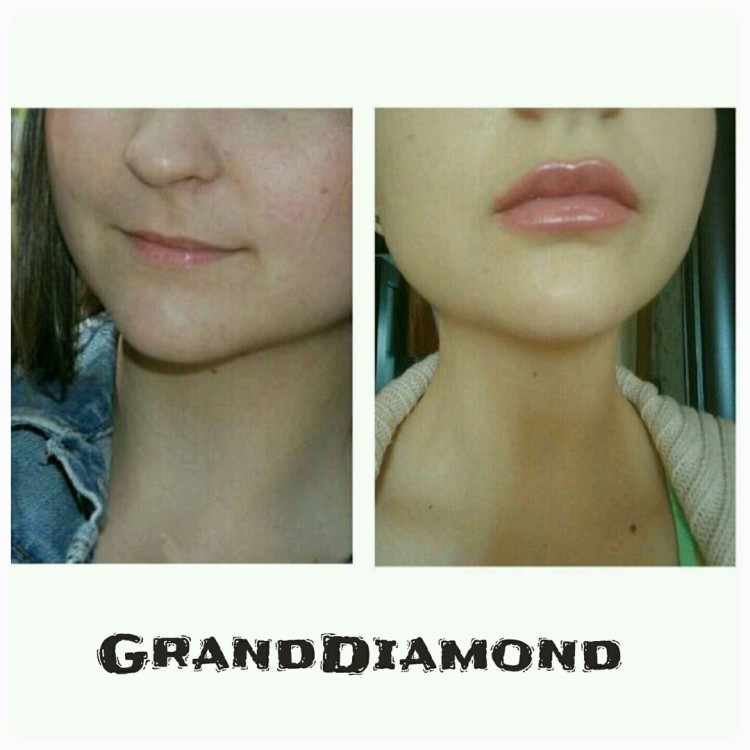 Увеличение губ в салоне Grand Diamond, Владивосток